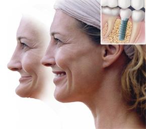 Cấy ghép implant giúp phục hình khuôn mặt