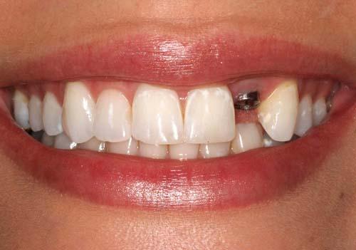 Cấy răng implant ngay sau khi nhổ răng được không ?