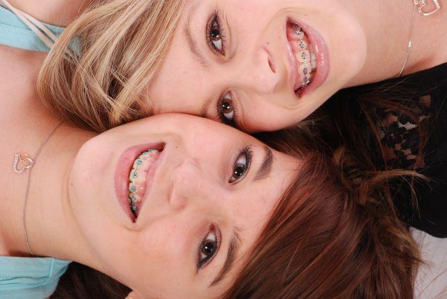 Chăm sóc răng khi mang niềng răng