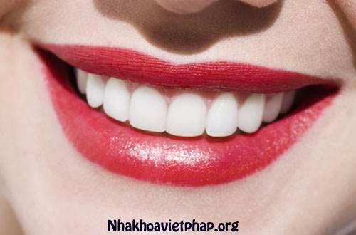 Chăm sóc răng miệng như thế nào cho đúng