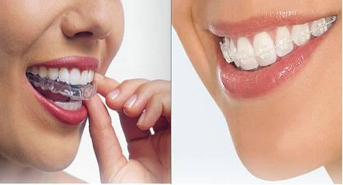 Chăm sóc răng sau khi tháo mắc cài