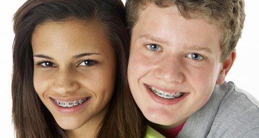 Chi phí niềng răng cửa hết bao nhiêu ?
