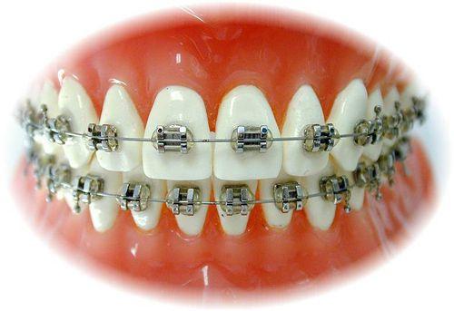 Chi phí niềng răng mắc cài inox