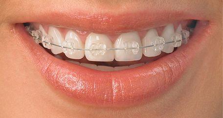 Chi phí niềng răng mắc cài sứ