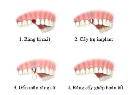 Chi phí trồng răng hàm bao nhiêu tiền ?