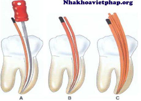 Chửa tủy răng nhiễm trùng