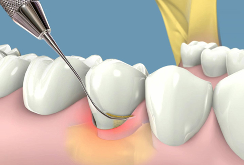 Chữa viêm chân răng ở bà bầu an toàn