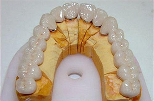 Có mấy phương pháp trồng răng giả vĩnh viễn