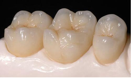 Có nên bọc răng sứ thẩm mỹ hay không ?