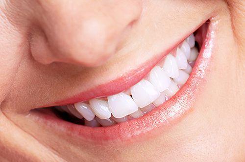 Có nên cạo vôi răng và tẩy trắng răng cùng lúc