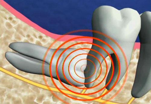 Có nên nhổ răng khôn khi mang thai ?