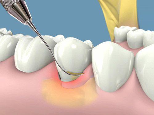 Có nên trám răng và cạo vôi cùng lúc không?