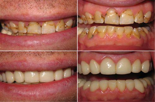 Đắp mặt răng composite