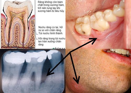 Triệu chứng và dấu hiệu viêm chân răng