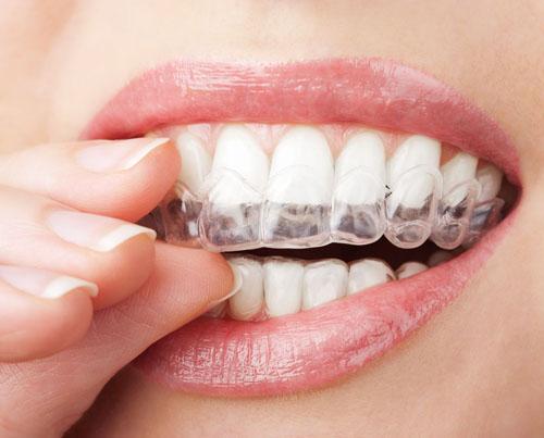 Dịch vụ niềng răng thẩm mỹ tại trung tâm nha khoa