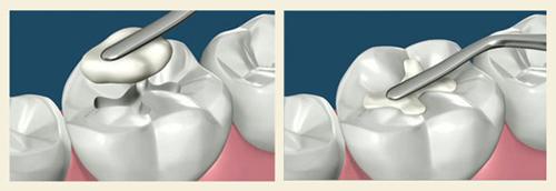 Dịch vụ trám răng thẩm mỹ tại trung tâm nha khoa
