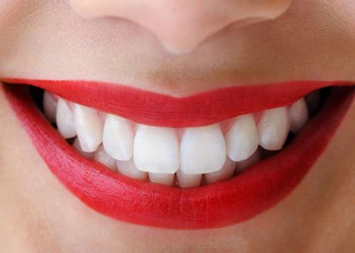 Độ bền của răng sứ được bao nhiêu năm ?