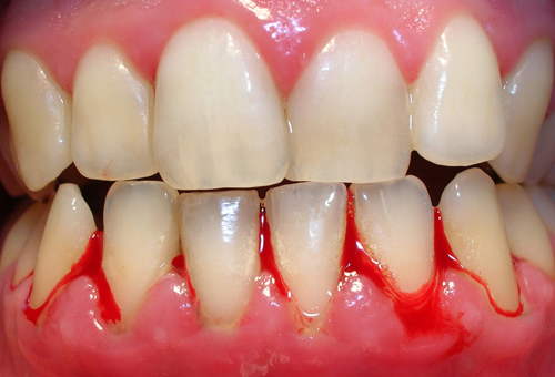 Đừng xem nhẹ khi bị chảy máy chân răng