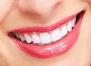 Ê buốt sau khi tẩy trắng răng