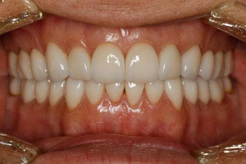 Giá răng sứ cercon bao nhiêu tiền ?