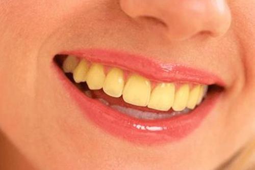 Hàm răng ố vàng phải làm sao đây ?