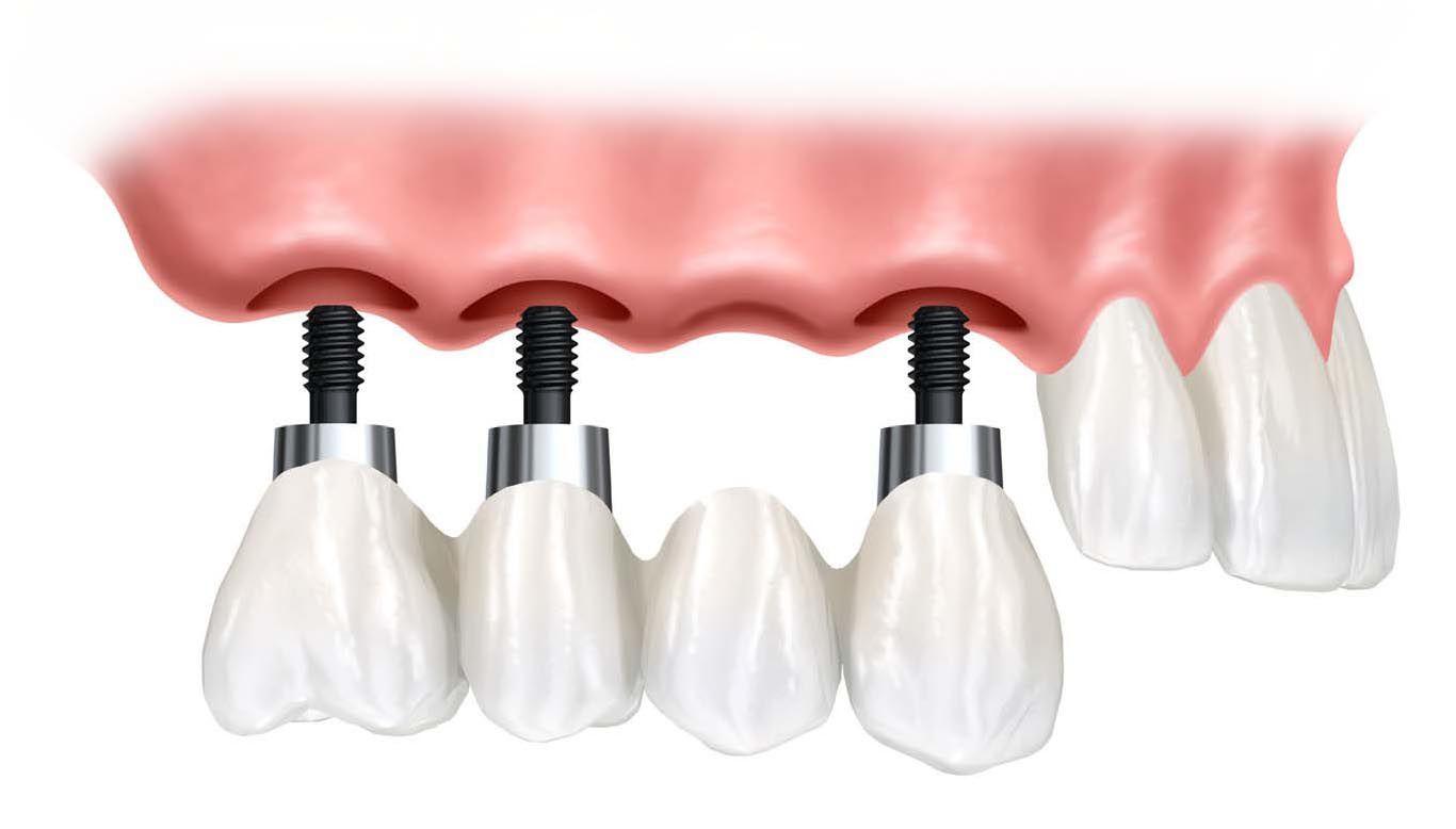 Implant nâng đỡ cầu răng
