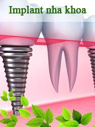 Cấy ghép Implant nha khoa Việt Pháp