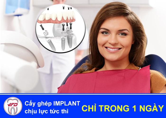 implant-tuc-thi-1