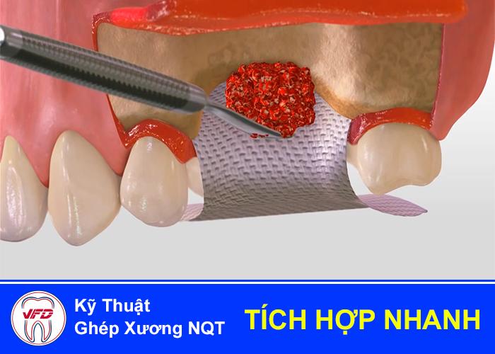 implant-tuc-thi-2