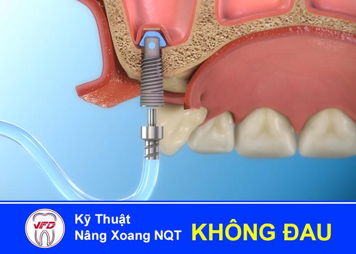 implant-tuc-thi-3