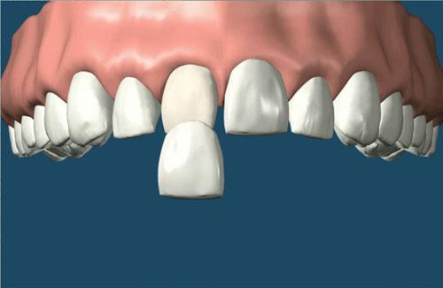 Khi bọc răng sứ có cần phải lấy tủy không?