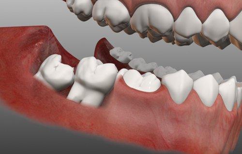 Khi nhổ răng khôn kiêng và nên ăn gì ?