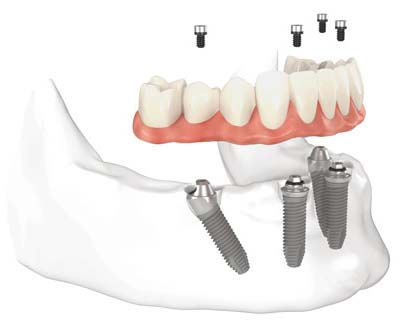 Kỹ thuật implant all on 4