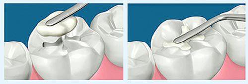 Làm gì khi răng chớm sâu