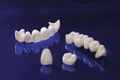 Làm răng giả cố định