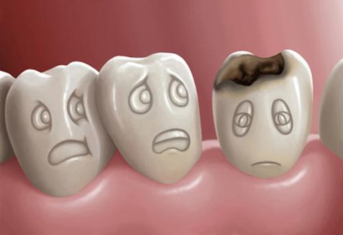 Làm sao để sớm phát hiện răng sâu ?