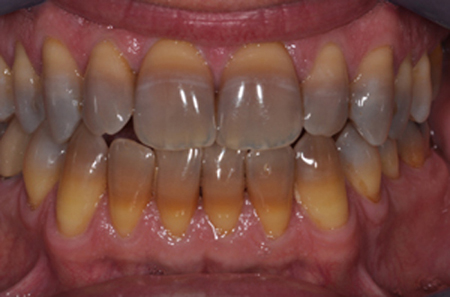 Làm trắng răng bị nhiễm tetracycline