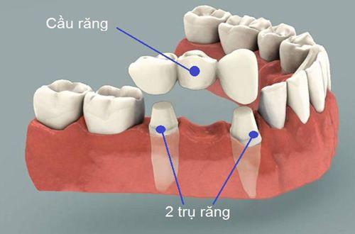 Mài răng có đau không