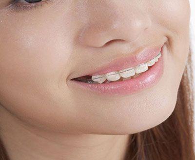 Mang niềng răng trước hay nhổ răng trước