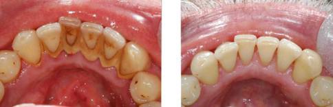Mang thai có cạo vôi răng được không?