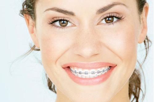 Mang thai có niềng răng được không?