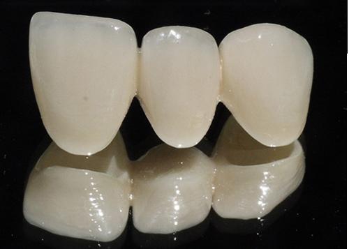 Mất một răng nên trồng răng sứ hay cấy implant