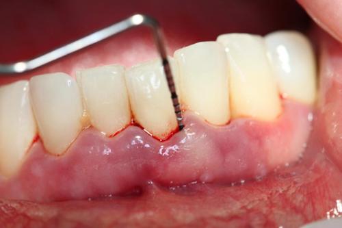Mẹo chữa viêm chân răng bằng thuốc nam tại nhà