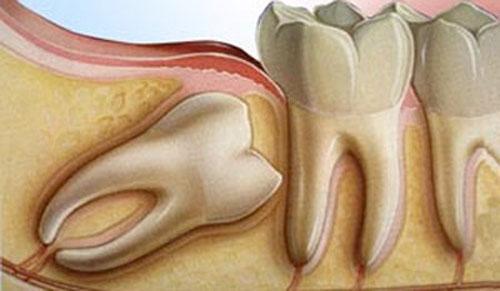 Mọc răng khôn có gây hôi miệng không ?