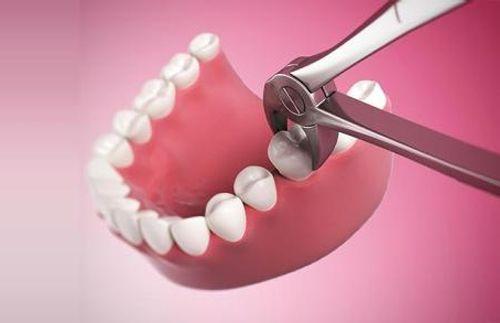 Mọc răng khôn có ý nghĩa gì không ?