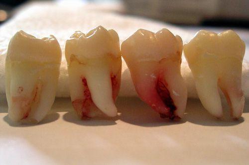 Mọc răng khôn trong thời gian bao lâu ?