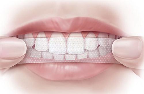 Nên hay không tẩy trắng răng tại nhà ?