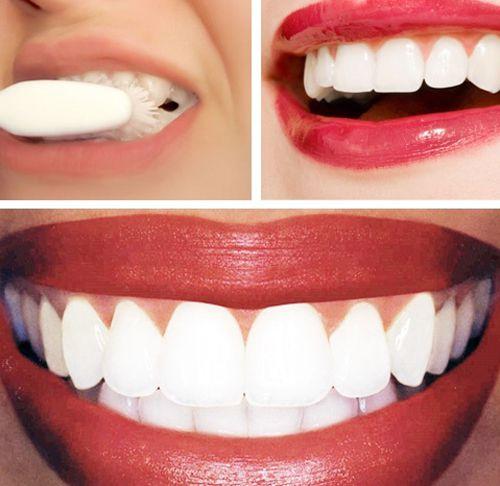 Nên tẩy trắng răng bằng phương pháp nào ?