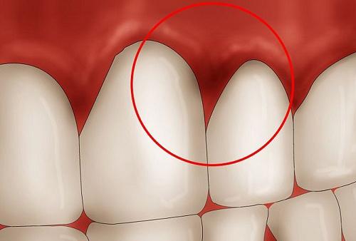 Nên uống thuốc gì điều trị viêm chân răng hiệu quả ?
