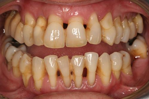 Nguy hại khôn lường khi dùng tăm xỉa răng.